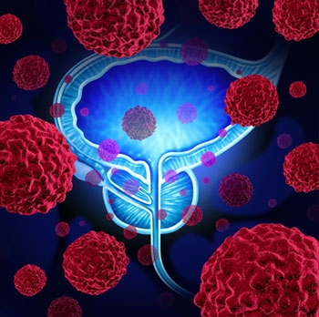 Cell patterns of the prostate are examined by a pathologist to give a Gleason score.